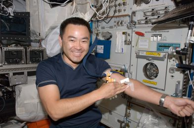 Spaceflight does some bizarre issues to astronauts' our bodies